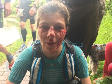 GUCR - Ran into & headbutted a bridge at mile 27. Had a bit of a headache for the next 118 miles.