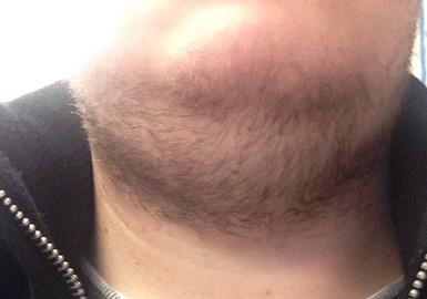 Beard: Week Two. Getting there... sort of...