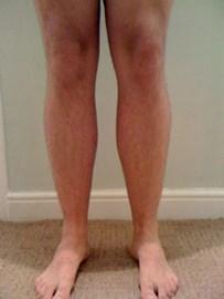 Bingo Dave's hairy legs!