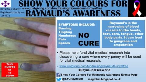 Raynauds Symptoms