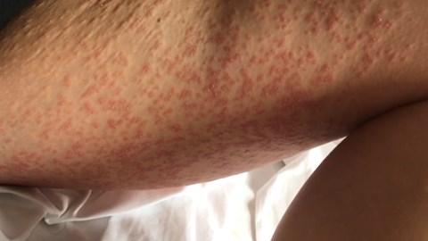 My worst psoriasis outbreak on my legs.