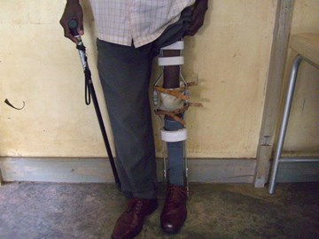 A recycled kafo on a polio patient