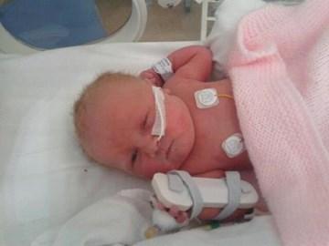 this is nancy on born 34 weeks