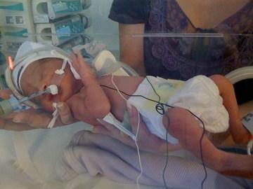 Caleb born 10 weeks premature 3lb 1oz.