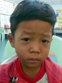 Zin Ko aged 6 diagnosed with lukaemia