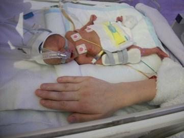rueben at two weeks old