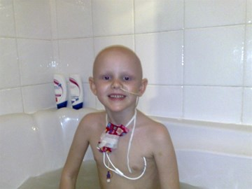 Abigail during her chemotherapy