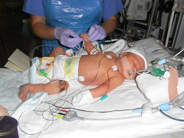 Kitty in PICU fighting for life