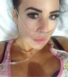 After operation number 2. I refused to take my eyelashes off for surgery 🙈