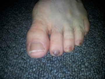 Toes suffering. Sponsor me please http://www.justgiving.com/Ben-Houlford