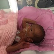 Olive when she was in the neonatal unit