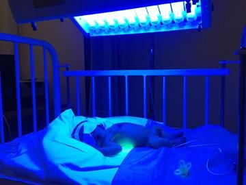 Oscar Receiving Life Saving Light Therapy at 9 days old
