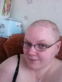 Me bald!