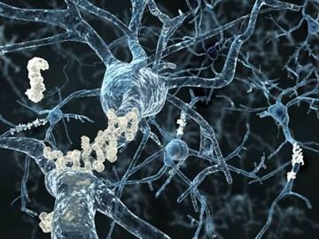 CRF Alzheimer's disease