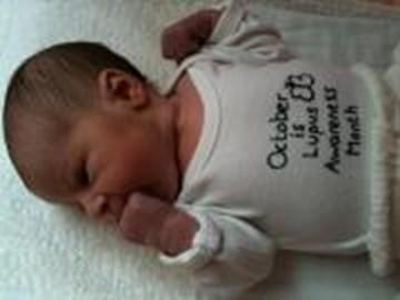 Baby Keziah spreading the lupus love