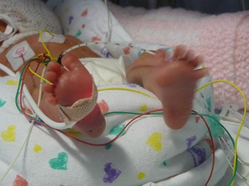 So many wires - even down to her toes!