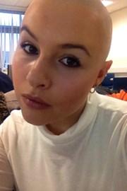 Fully Bald!