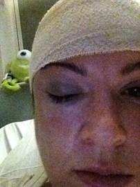 Post Surgery photo