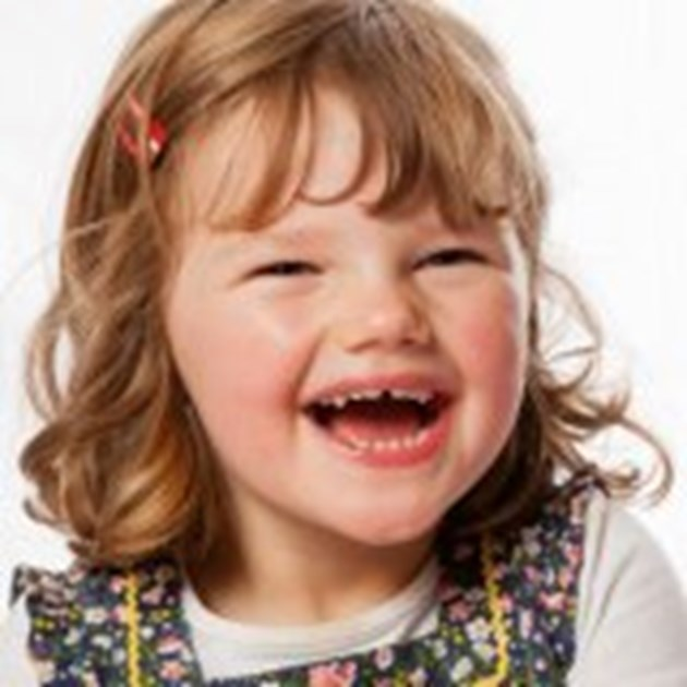 a study of angelman syndrome Angelman syndrome is a genetic condition that is present at birth (congenital) it causes intellectual disability and other features other characteristics of angelman syndrome include distinctive facial features, mental retardation, speech problems and hyperactive behaviour.