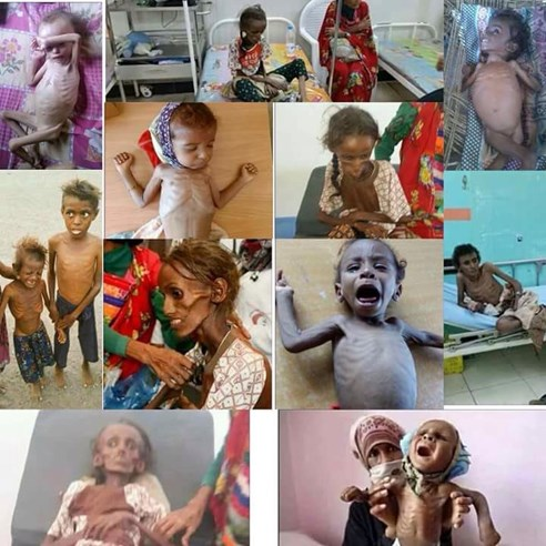 Image result for Yemen Crisis