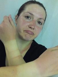 Sunburnt after the event!