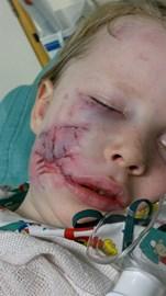 Alex after surgery