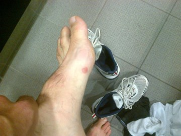 Just for you Jim, blisters for ben!