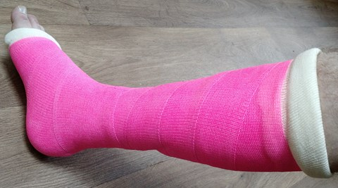 My pink cast!