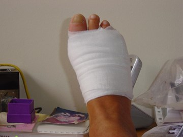 Poorly Foot no training for 8 weeks!