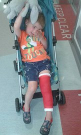 Hugo with a platser cast just because he cut his knee