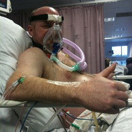 Simon hooked up to the ECMO machine